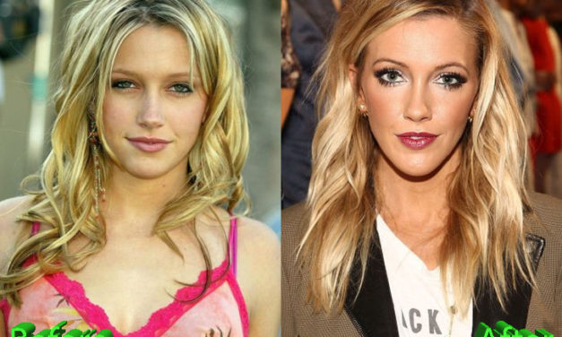 Katie Cassidy Plastic Surgery: Not The Best Of Ideas
