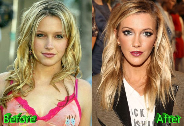Katie Cassidy Plastic Surgery Before and After 630x433
