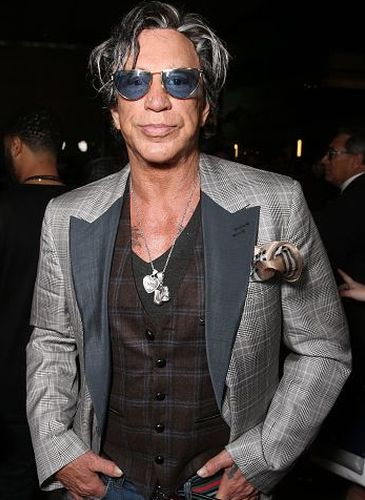 Mickey Rourke After Plastic Surgery