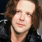 Mickey Rourke Before Surgery Procedure 150x150