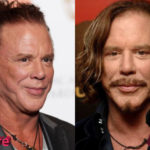 Mickey Rourke Before and After Cosmetic Surgery 150x150
