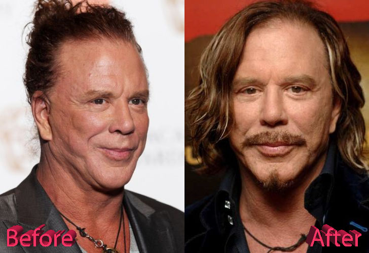 Mickey Rourke Before and After Cosmetic Surgery