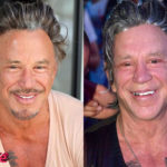 Mickey Rourke Before and After Surgery Procedure 150x150