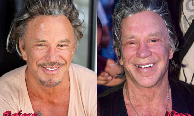 Mickey Rourke Plastic Surgery: Is It Enough?