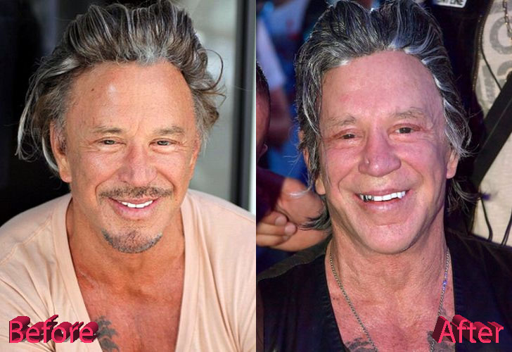 Mickey Rourke Before and After Surgery Procedure