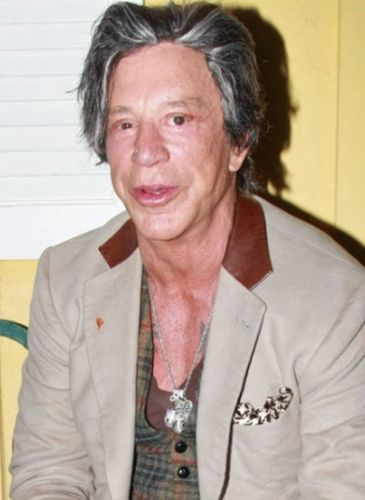 Mickey Rourke Multiple Surgery