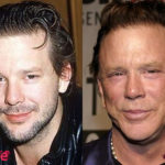 Mickey Rourke Plastic Surgery Before and After 150x150