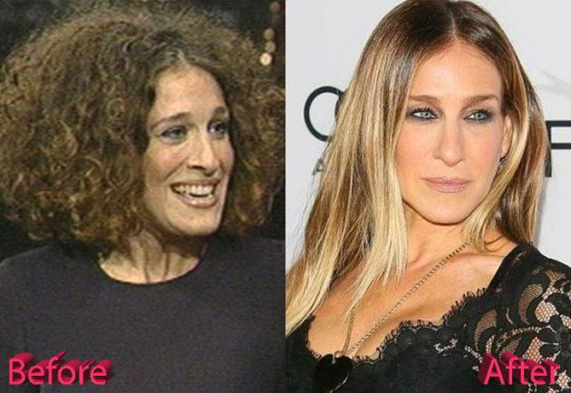 Sarah Jessica Parker Before and After Nosejob Procedure 630x433