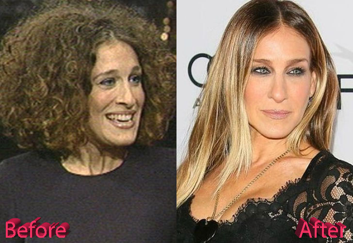 Sarah Jessica Parker Before and After Nosejob Procedure