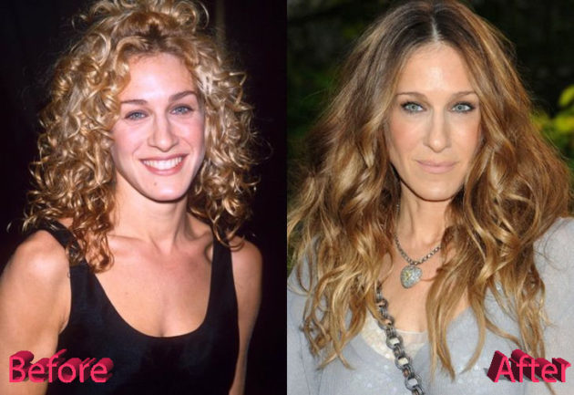 Sarah Jessica Parker Before and After Rhinoplasty 630x433