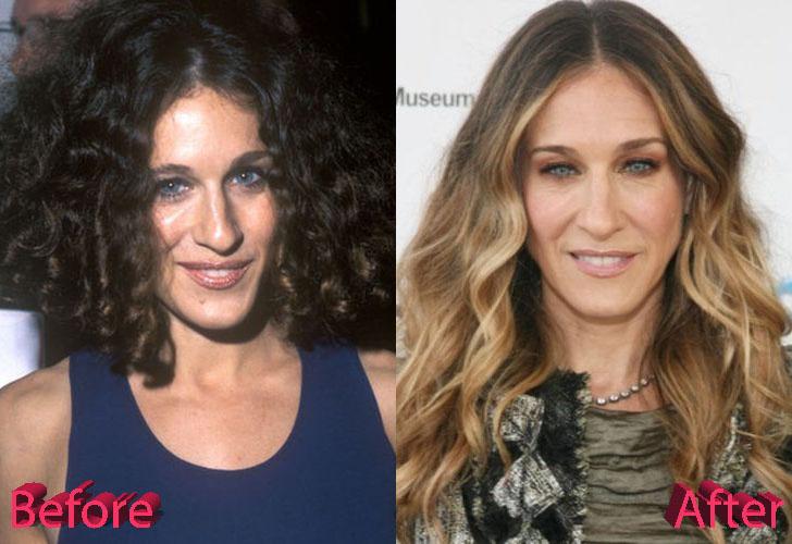 Sarah jessica parker nose job before and after