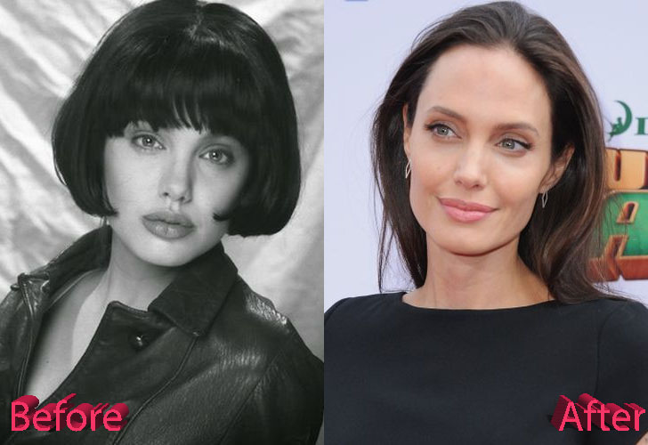 Angelina Jolie Before and After Cosmetic Surgery