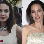 Angelina Jolie Before and After Surgery Procedure 150x150