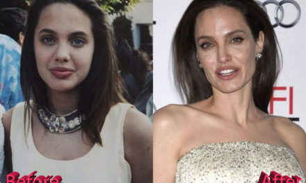 Angelina Jolie Plastic Surgery: Still a Beauty Icon