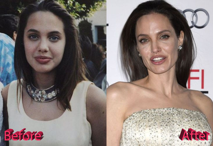 Angelina Jolie Before and After Surgery Procedure