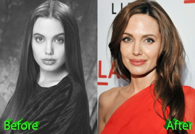 Angelina Jolie Plastic Surgery Before and After 630x433