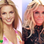 Britney Spears Before and After Surgery Procedure 150x150