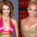 Britney Spears Plastic Surgery Before and After 150x150