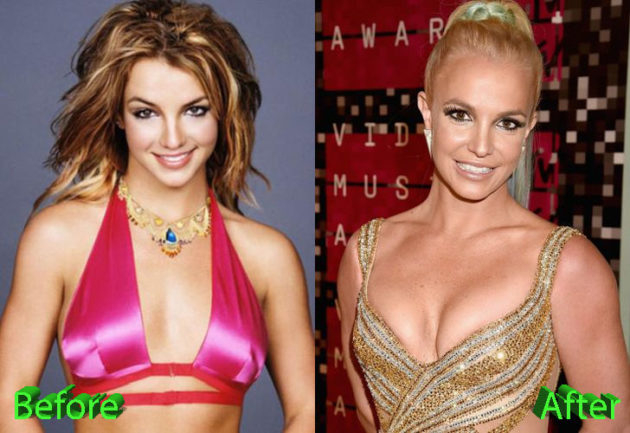 Britney Spears Plastic Surgery Before and After 630x433