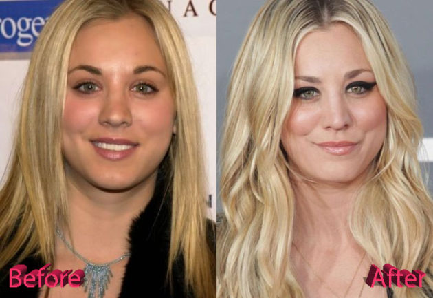 Kaley Cuoco Before and After Surgery Procedure 630x433