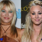 Kaley Cuoco Plastic Surgery Before and After 150x150