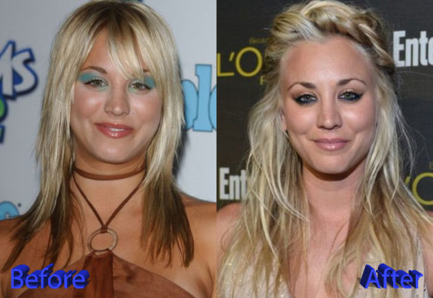 Kaley Cuoco Plastic Surgery Before and After 630x433