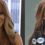 Holly Sonders before and after lip job plastic surgery 150x150