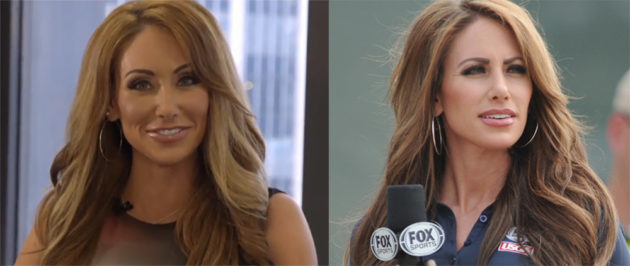 Holly Sonders before and after lip job plastic surgery 630x266