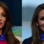 Holly Sonders before and after plastic surgery 150x150