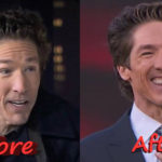 Joel Osteen Before and After Plastic Surgery 150x150