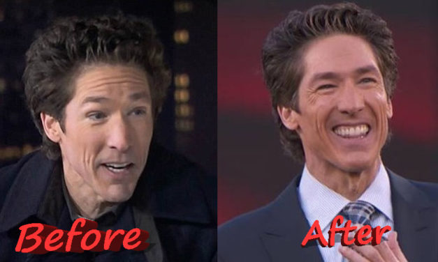 Is the Speculation About Joel Osteen Plastic Surgery True?