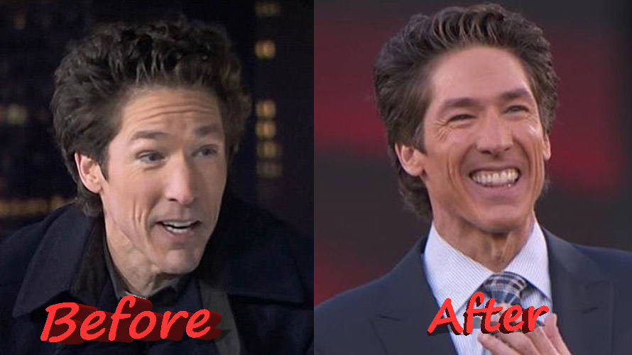 Joel Osteen Before and After Plastic Surgery