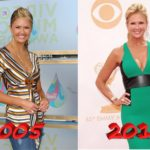 Nancy ODell before and after boob job plastic surgery 150x150