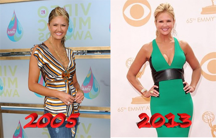 Nancy ODell before and after boob job plastic surgery