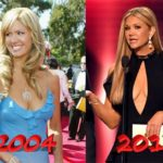 Nancy ODell breast plastic surgery before and after 150x150