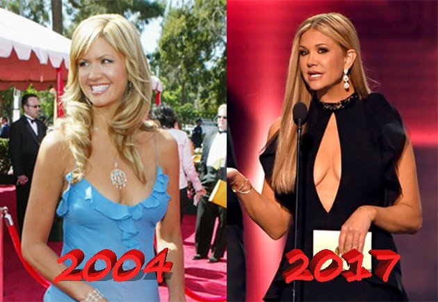 Nancy ODell breast plastic surgery before and after