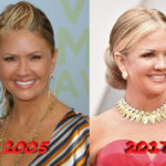 Nancy ODell plastic surgery before and after 150x150