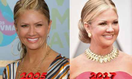 Nancy O'Dell Joins the List of Plastic Surgery Stars