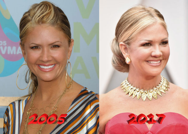 Nancy ODell plastic surgery before and after 630x449