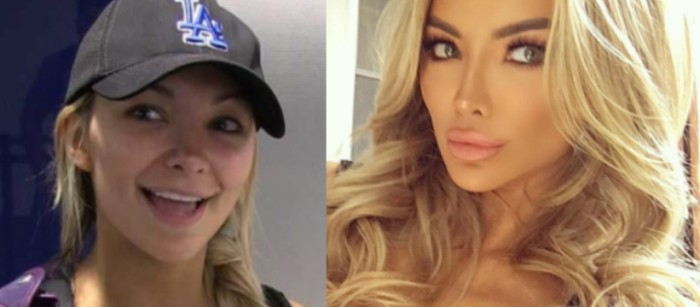 lindsey pelas plastic surgery before and after