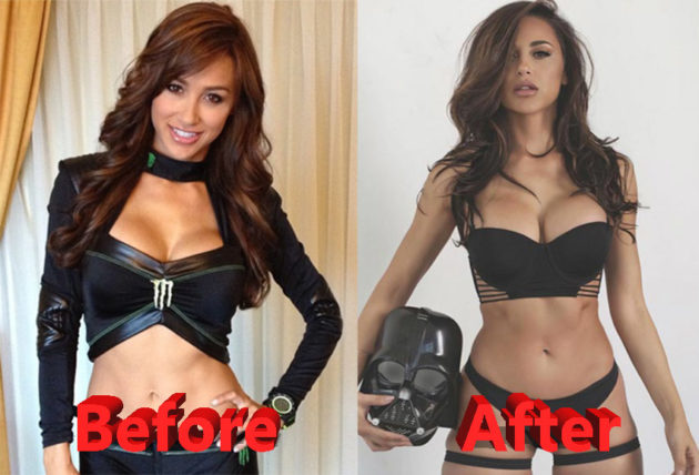 Ana Cheri Before and After Plastic Surgery 630x428