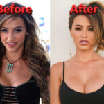 Ana Cheri Plastic Surgery Before and After Lip Implants an Nose Job 150x150