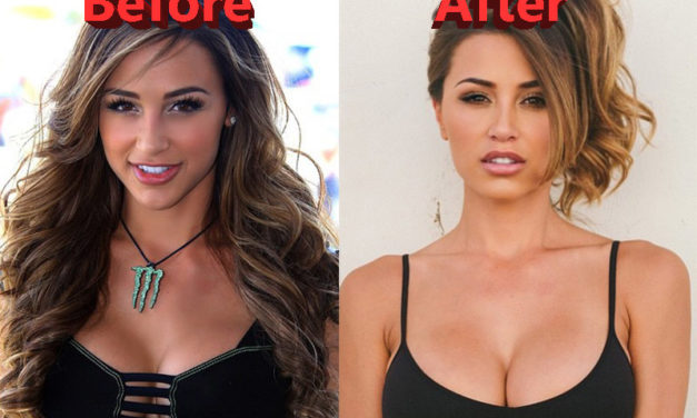 Ana Cheri Plastic Surgery – The Effect on her Career