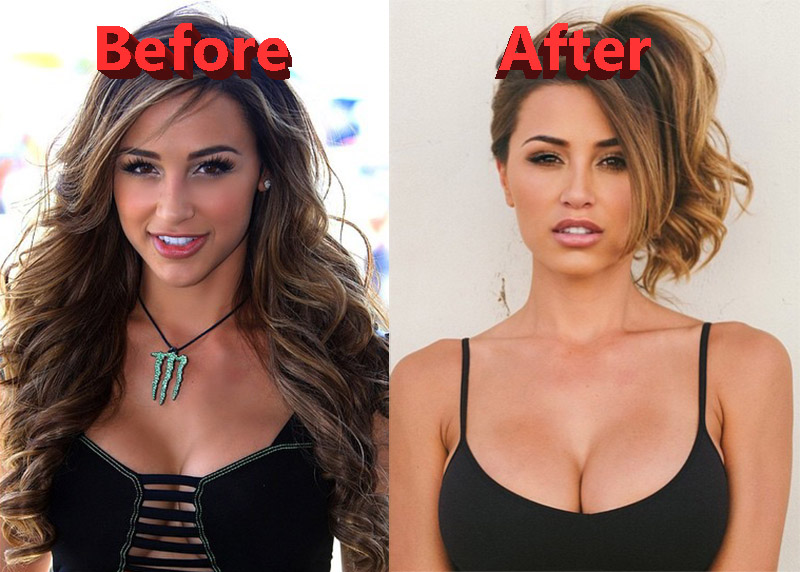 Ana Cheri Plastic Surgery Before and After Lip Implants an Nose Job