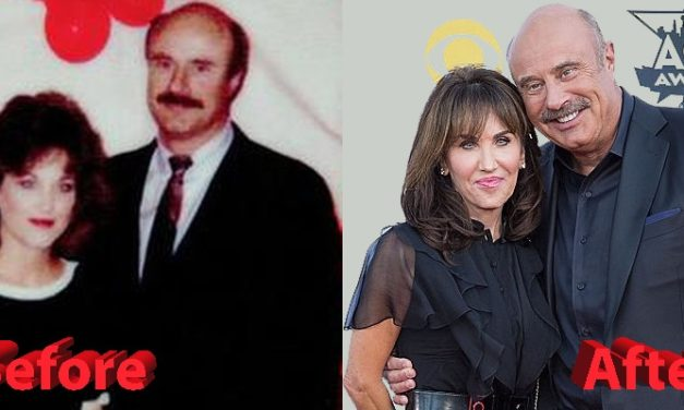 Robin McGraw Plastic Surgery: Are the new rumors true?