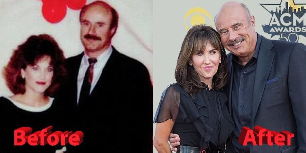Dr. Phil and Robin McGraw Before and After 630x315