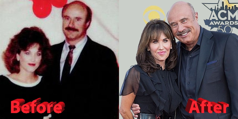 Dr. Phil and Robin McGraw Before and After