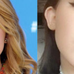 Noah Cyrus before and after lip implants 150x150