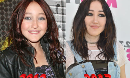 Noah Cyrus Plastic Surgery: Singer Turns into Muppet
