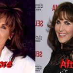 Robin McGraw Before and After 150x150